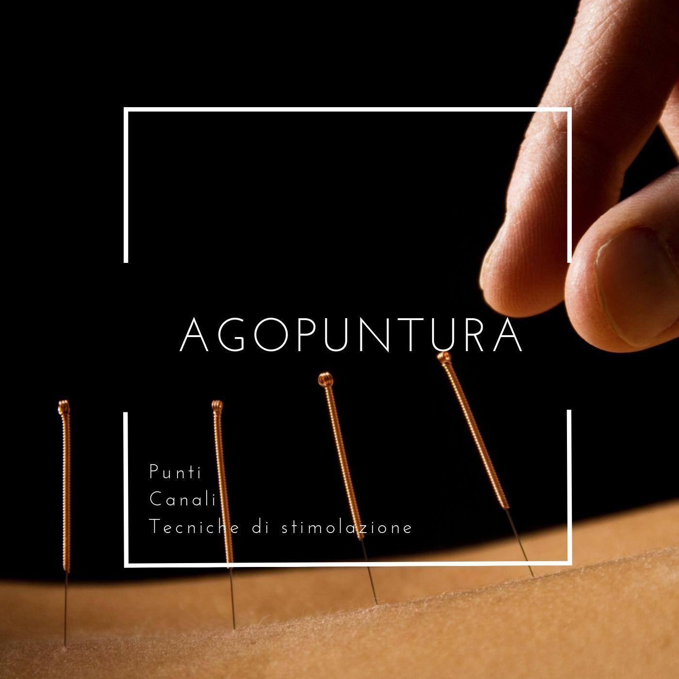 Agopuntura smettere di fumare olbia